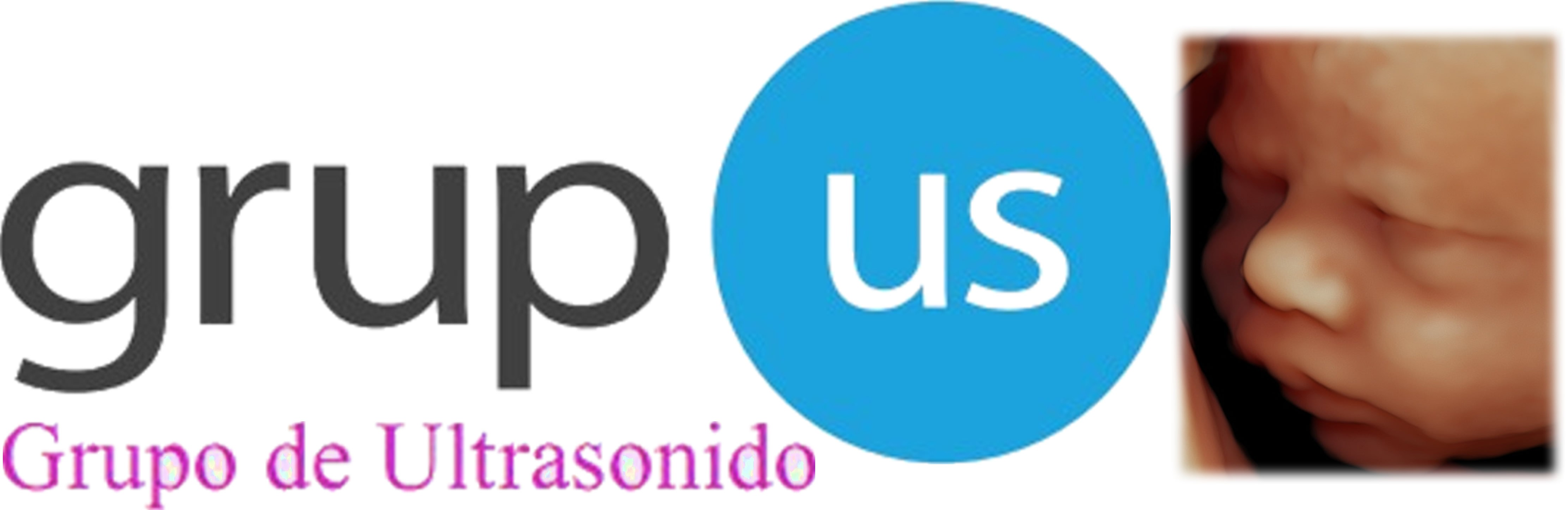 Grupo de Ultrasonido